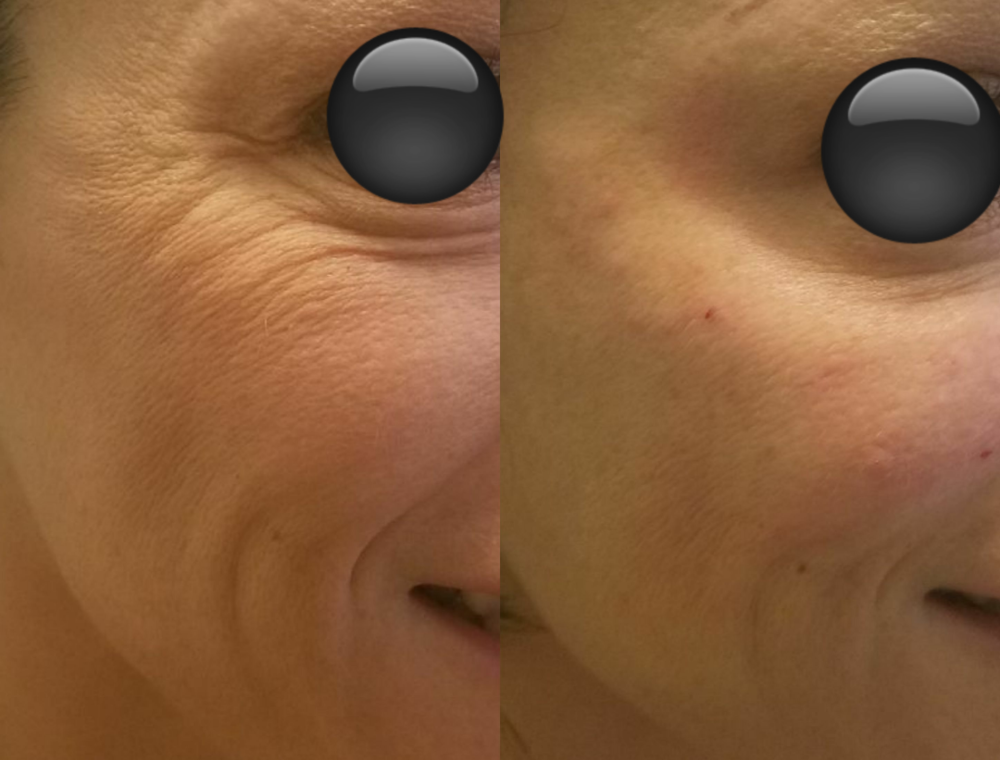 before and after Vollure to cheeks 2017.png