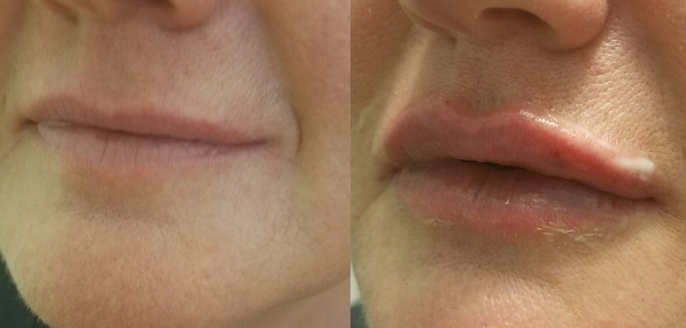 before and after juvederm ultra xc to lips 2016.jpg