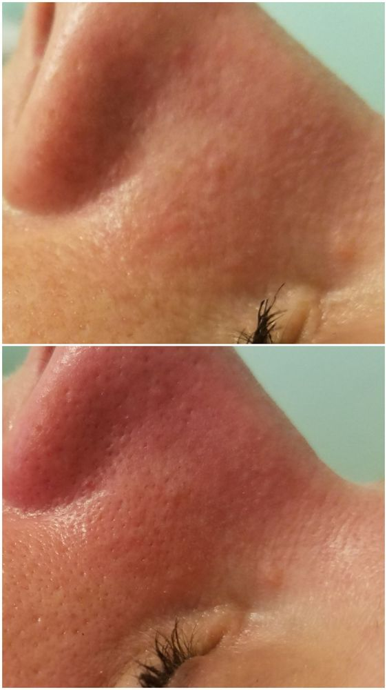 before and after microdermabrasion