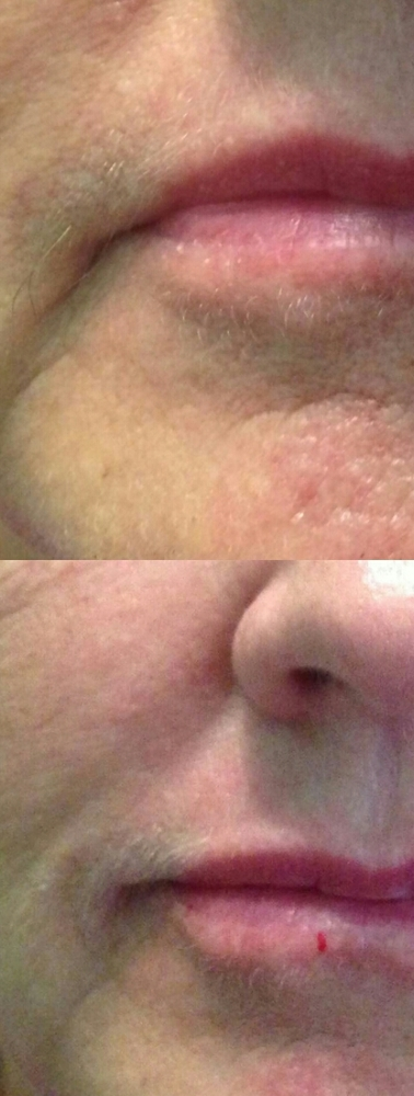 marionette lines correction dermal fillers christine dale