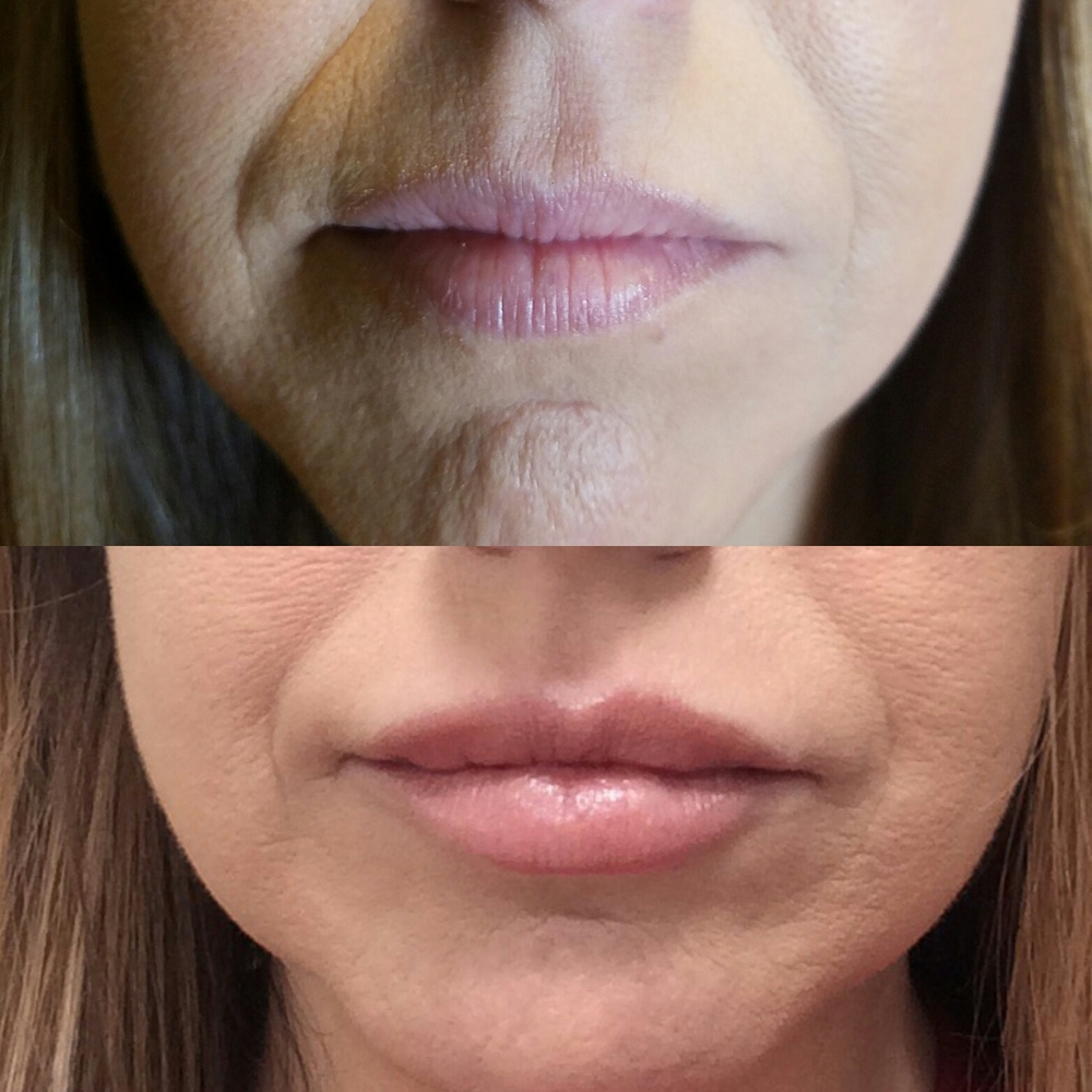 lip filler lip augmentation simply beautiful medical spa christine dale lisa chism